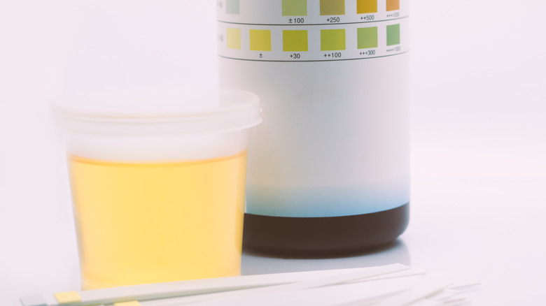 urine sample in cup