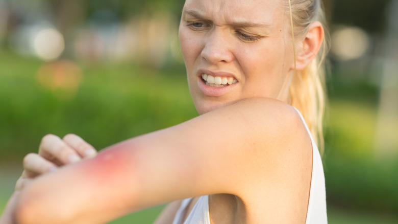 A woman looks at a bee sting on her arm.