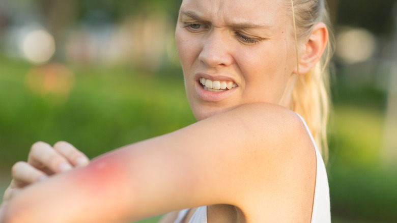 Mosquito bite on woman's arm