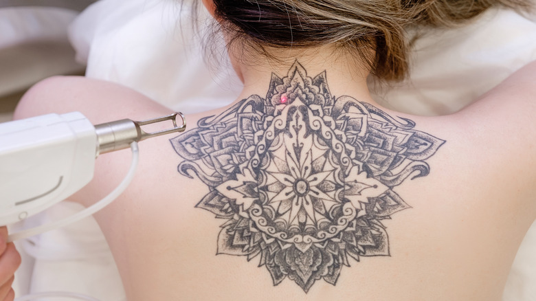 Woman getting upper back tattoo removed with laser